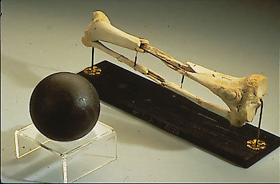 Sickles' leg, along with a cannonball similar to the one that shattered it, on display at the National Museum of Health and Medicine (from Wikipedia.org)